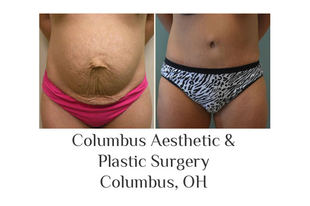 Columbus Aesthetic & Plastic Surgery