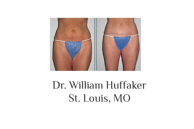 Dr. William Huffaker
