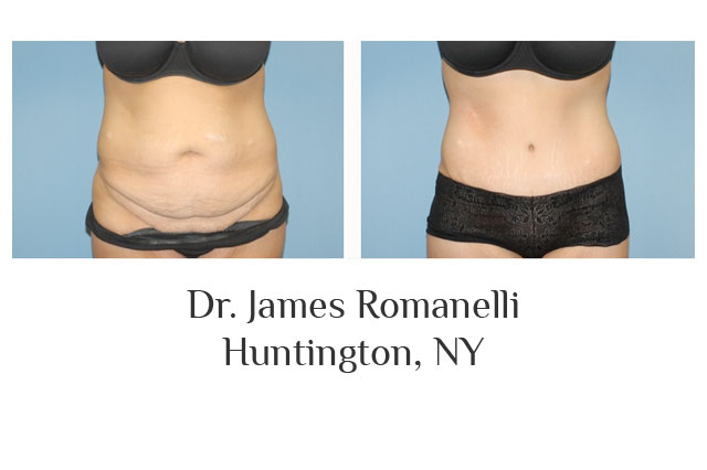 Dr. James Romanelli