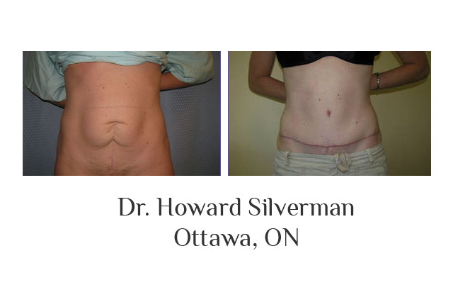 Dr. Howard Silverman